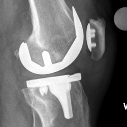 Cementless Fixation for Knee Replacement in Younger Patients