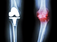 Total Knee Replacement vs Damaged Knee Joint